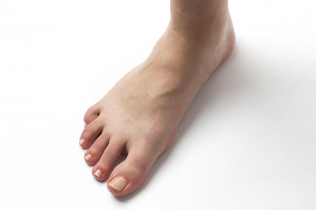 立位での足部はどう見る?